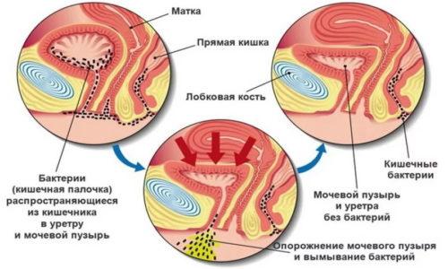 Основная причина цистита у женщин - особенность строения мочеполовой системы