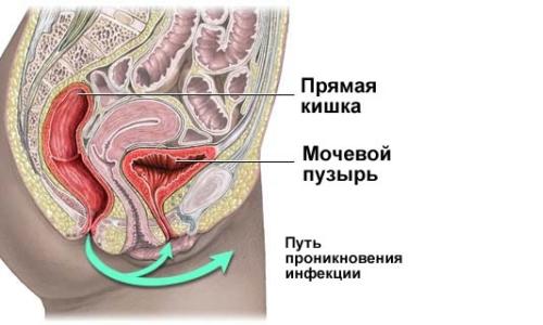 Наиболее вероятный путь проникновения инфекции в мочевой пузырь