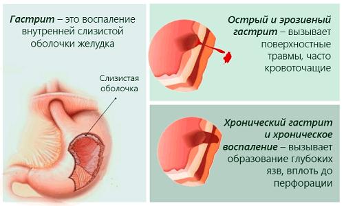 Сопутствующим заболеванием панкреатита является гастрит