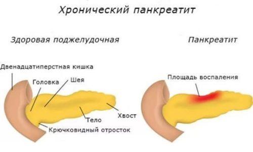 Хронический панкреатит характеризуется воспалительным процессом, протекающим в поджелудочной железе и имеющим хроническую форму