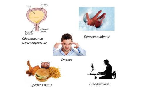 Факторы провоцирующие цистит у мужчин.