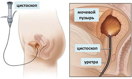 Цистоскопия позволяет выяснить причину заболевания и назначить корректное лечение