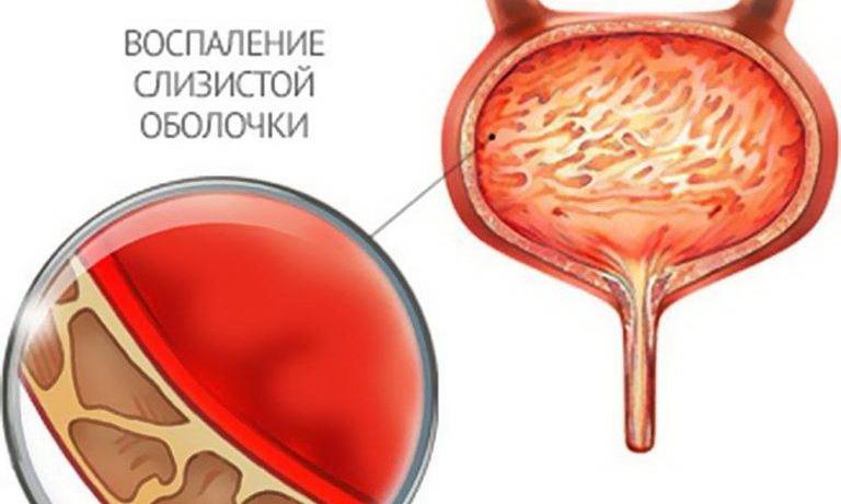 Геморрагический цистит (острый и хронический) у женщин, мужчин, детей: лечение (препараты, народные средства), симптомы, причины