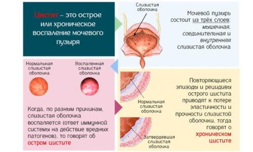 Схема цистита