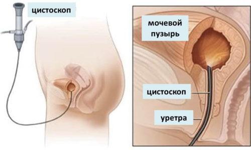 Для постановки диагноза и проведения дифференциальной диагностики у женщин проводят цистоскопию