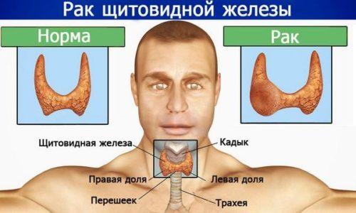 Более чем 70% опухолей щитовидной железы перерастают в папиллярный рак или папиллярную карциному