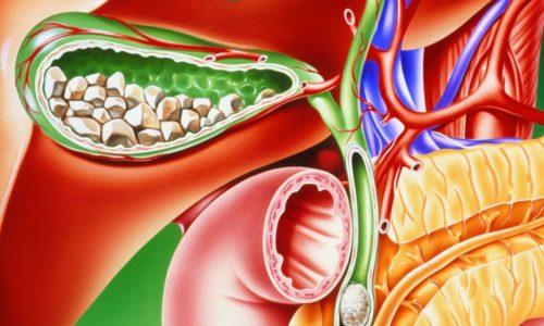 Хронический калькулезный холецистит представляет собой воспаление стенок желчного пузыря (ЖП), при котором из желчи образуются камни