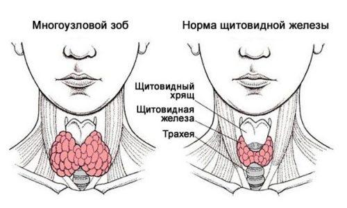 Многоузловой зоб щитовидной железы представляет собой несколько сросшихся увеличенных фолликул, как - будто спаянных друг с другом