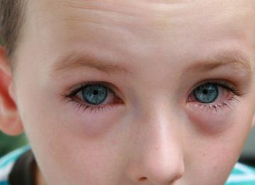 Воспаление слезного мешка у детей и взрослых
