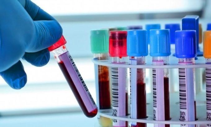 Во время лечении нужно сдавать анализы крови на гормоны