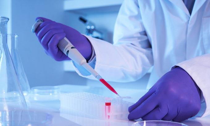 Общий анализ крови – повышенное количество нейтрофилов покажет воспалительный процесс