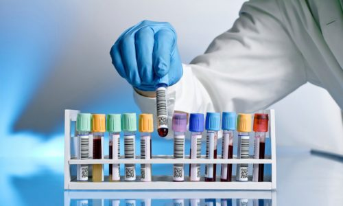 Для диагностики заболевания сдается биохимический анализ крови на антитела и гормоны