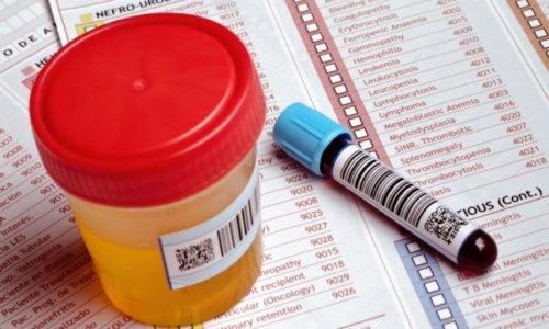 Симптомы цистита не уникальны, они могут сигнализировать и о других заболеваниях мочеполовой системы, поэтому для назначения лечения очень важно провести анализ крови и мочи