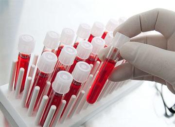 Как сдавать анализы на гормоны щитовидной железы