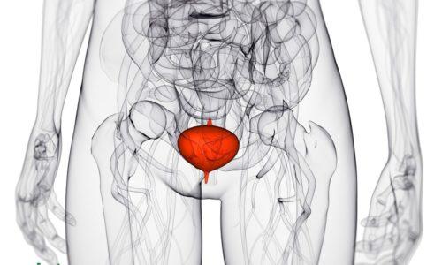 Цистит – воспалительное заболевание стенок мочевого пузыря