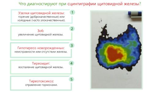Сцинтиграфия помогает определить наличие очаговых и диффузных изменений; тиреоидной ткани и её месторасположение; рецидивов после хирургического вмешательства; образований и их размеров