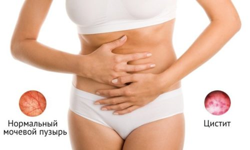 Цистит — воспаление слизистой оболочки мочевого пузыря, в результате которого нарушается функция выделения мочи
