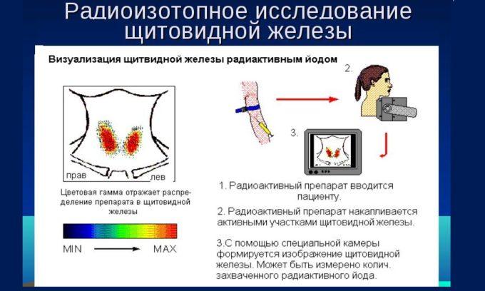 Радиоизотопные сканирование проводится для диагностики узлов на щитовидной железе