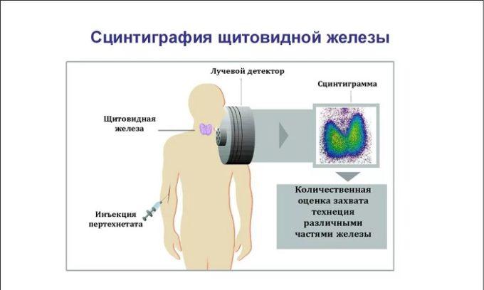 Схема радиоизотопного исследования щитовидной железы