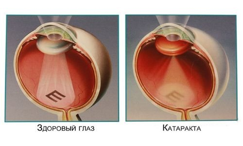 Гипопаратиреоз может привести к развитию катаракты