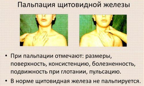 Прощупывание шеи и визуальный осмотр позволяют определить размер, структуру новообразования