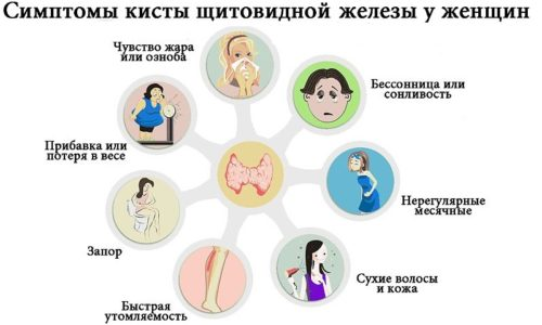 Симптомы при проблемах со щитовидкой могут выражаться по разному
