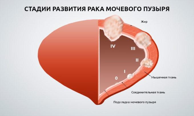 Чаще всего диагностируют переходно-клеточный рак и только в 10% всех случаев выявляют аденокарциному и плоскоклеточную форму новообразования