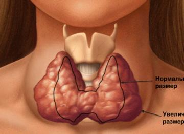 Как лечить узлы на щитовидке: современные подходы к проблеме