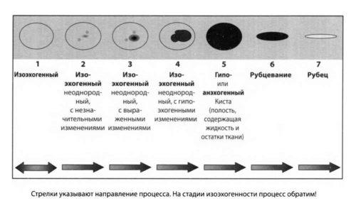 Любые кисты щитовидной железы отличаются последовательностью и стадийностью своего развития
