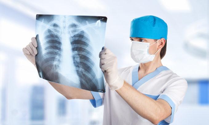 Пациентам с зобом III-IV степени назначается рентген грудной клетки