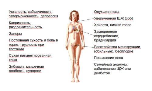 Гипотиреоз железы, симптомы которого для специалиста могут быть заметны очень быстро, для простого человека не так-то просто собрать воедино
