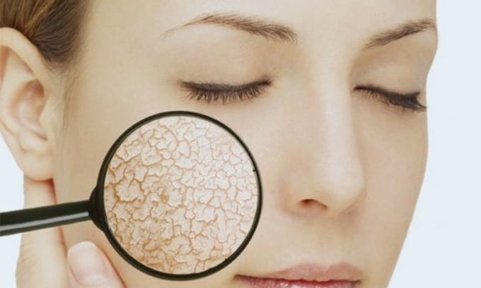 Гипофункция может привести к сухости кожи