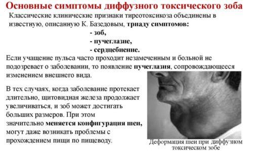 Диффузный токсический зоб получил название болезни Грейвса, которая может привести к тиреотоксикозу