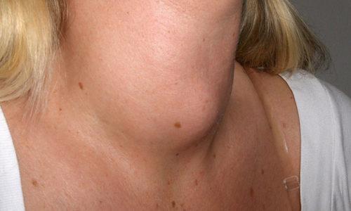 При развитии болезни до 3 степени меняется внешний вид человека, поскольку увеличивается в размерах шея