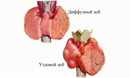 При нарушении работы щитовидной железы образуется узловой зоб