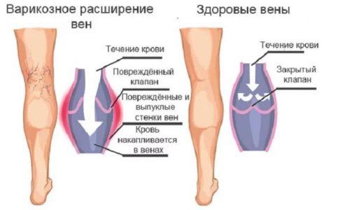 При нарушении функционирования кровотока по организму венозные сосуды постепенно изнашиваются, деформируются, и в них происходит застой венозной крови. Это и есть варикозное расширение вен ног