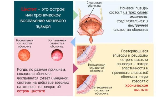 Цистит - наиболее часто диагностируемое заболевание мочевого пузыря