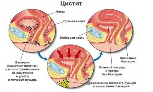 Обычно главной причиной цистита является нахождение в области мочевого пузыря бактерий, которые попадают туда через каналы мочеиспускания