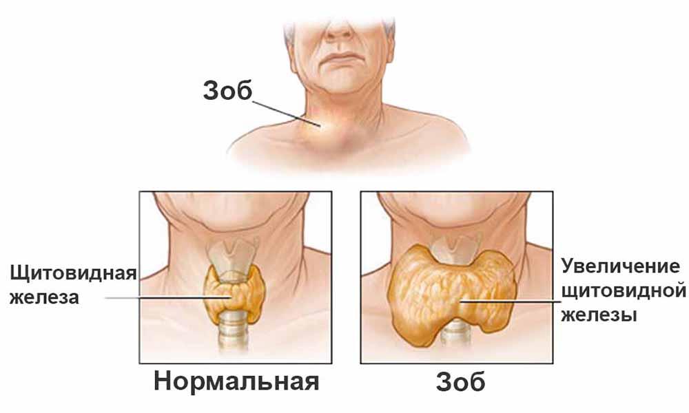 Узлы и кисты щитовидной железы  причины симптомы
