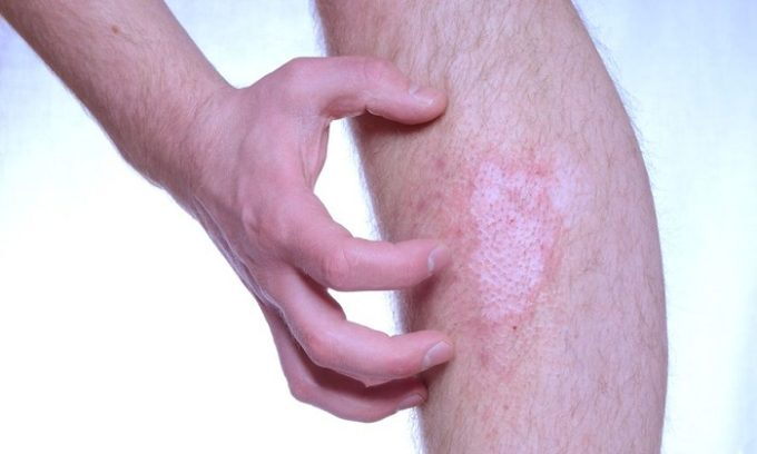 Нередко на коже появляются высыпания, которые доставляют дискомфорт