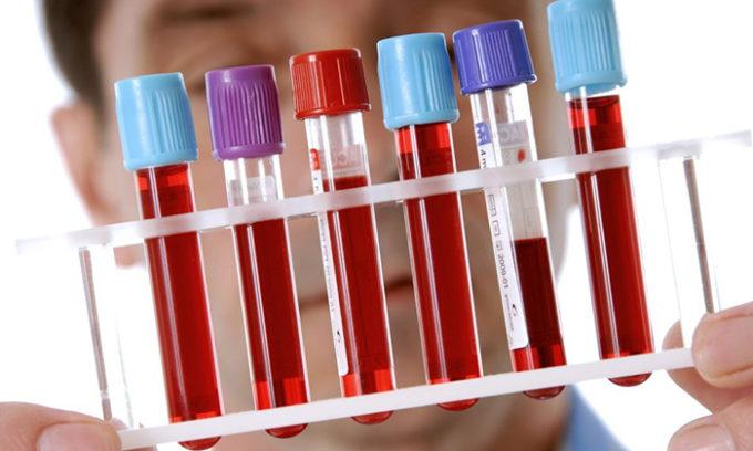 Для более точной диагностики нужно сдать анализ крови на уровень антител