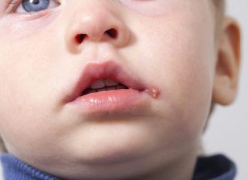 Каковы особенности герпеса 6 типа у детей?